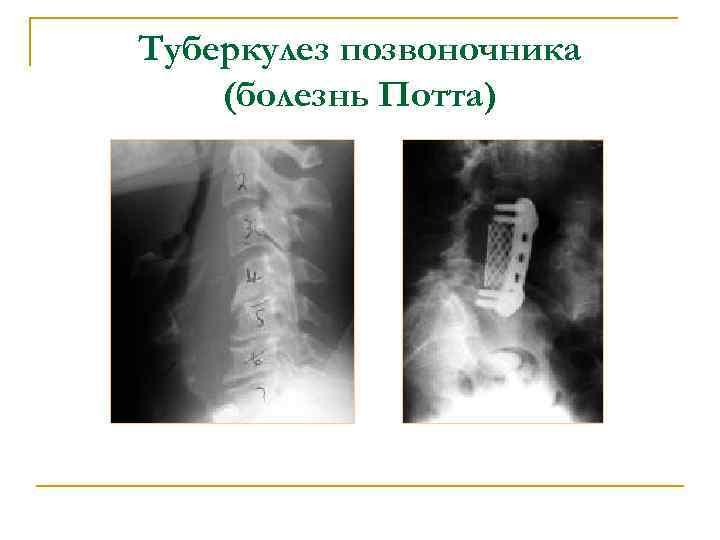Туберкулез позвоночника (болезнь Потта)