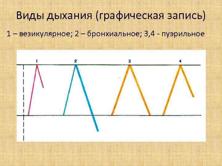 Виды дыхания (графическая запись) 1 – везикулярное; 2 – бронхиальное; 3, 4 - пуэрильное