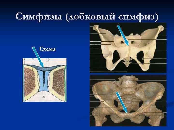 Лобковый симфиз в картинках