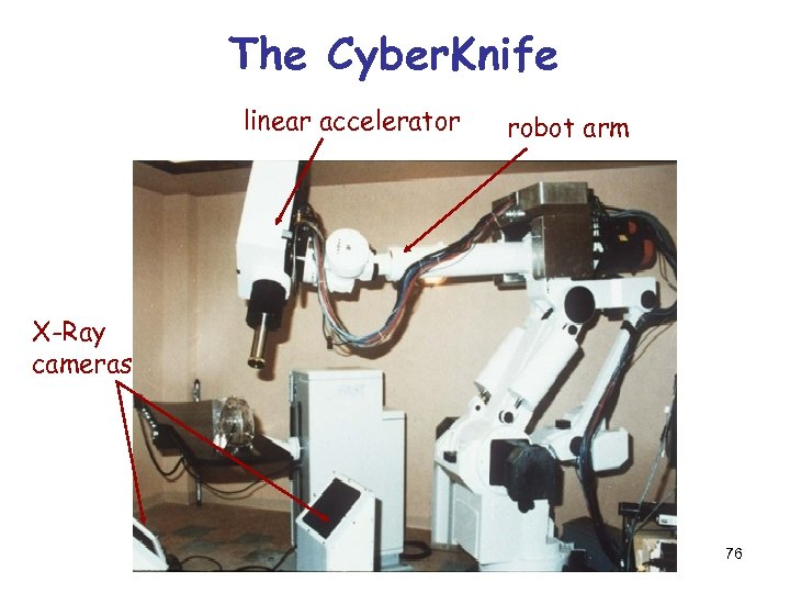 The Cyber. Knife linear accelerator robot arm X-Ray cameras 76