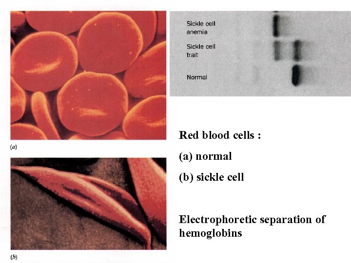 Red blood cells : (a) normal (b) sickle cell Electrophoretic separation of hemoglobins