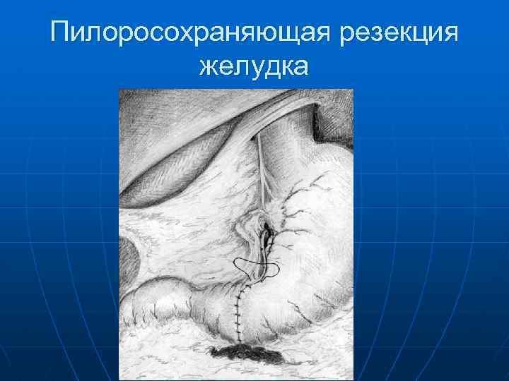 Пилоросохраняющая резекция желудка