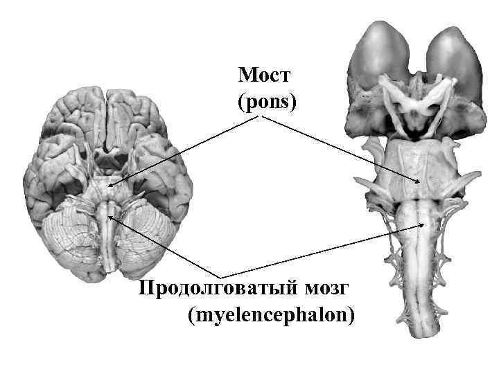 скандинавские картинки мозга мост изменить образ пришлось
