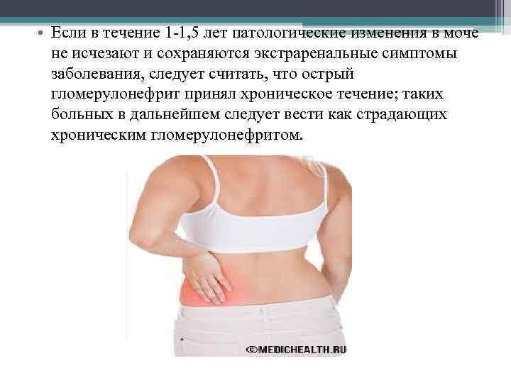 • Если в течение 1 -1, 5 лет патологические изменения в моче не