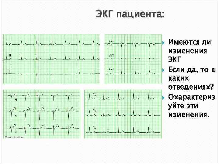 ЭКГ пациента: Имеются ли изменения ЭКГ Если да, то в каких отведениях? Охарактериз уйте