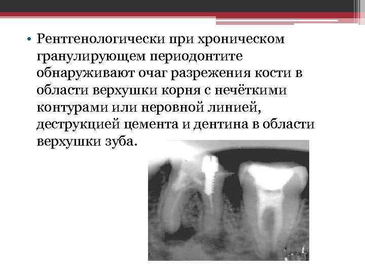 • Рентгенологически при хроническом гранулирующем периодонтите обнаруживают очаг разрежения кости в области верхушки
