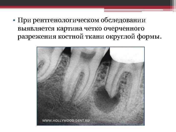 • При рентгенологическом обследовании выявляется картина четко очерченного разрежения костной ткани округлой формы.