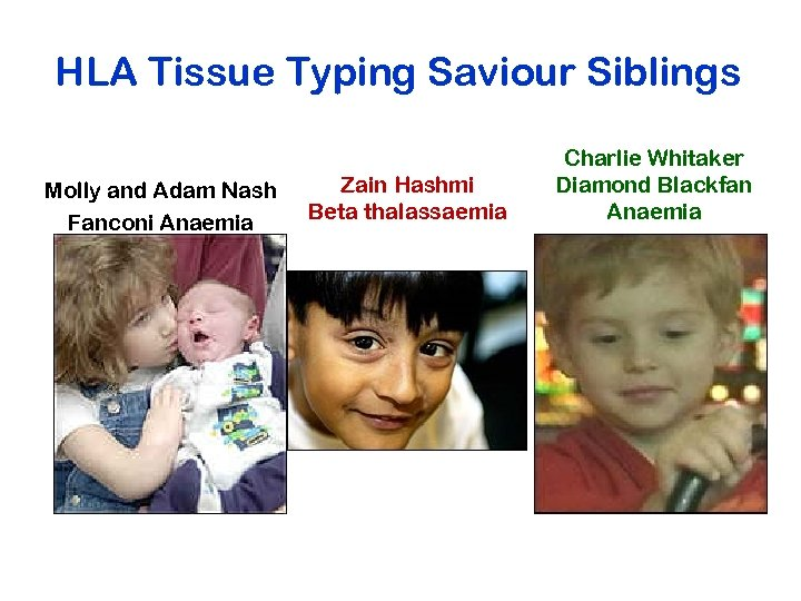 HLA Tissue Typing Saviour Siblings Molly and Adam Nash Fanconi Anaemia Zain Hashmi Beta
