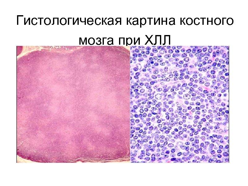 Гистологическая картина костного мозга при ХЛЛ