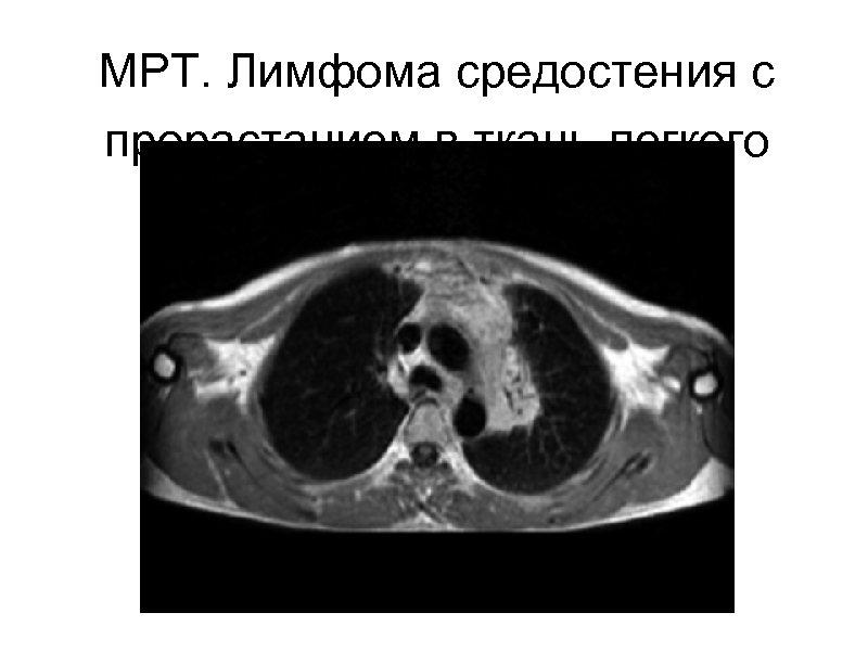 МРТ. Лимфома средостения с прорастанием в ткань легкого