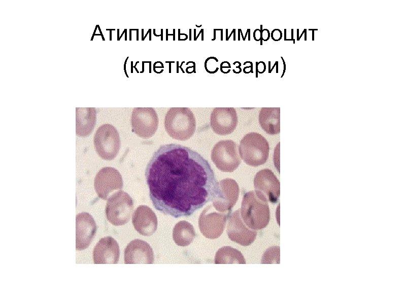 Атипичный лимфоцит (клетка Сезари)