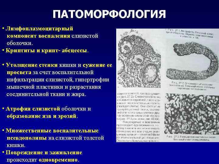 ПАТОМОРФОЛОГИЯ • Лимфоплазмоцитарный компонент воспаления слизистой оболочки. • Криптиты и крипт- абсцессы. • Утолщение