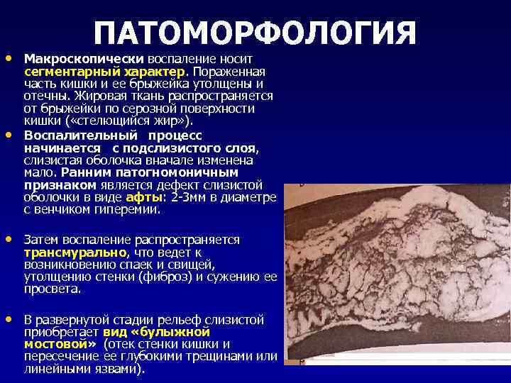 ПАТОМОРФОЛОГИЯ • Макроскопически воспаление носит • сегментарный характер. Пораженная часть кишки и ее брыжейка