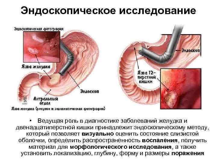 Диета перфоративная язва желудка