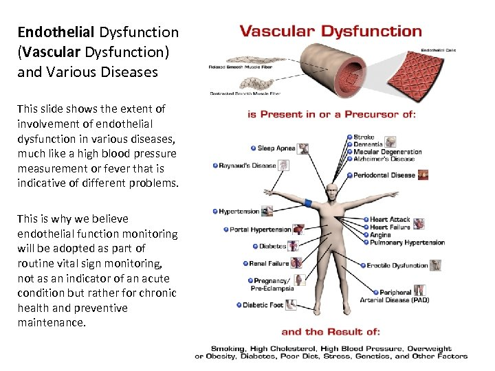 Endothelial Dysfunction (Vascular Dysfunction) and Various Diseases This slide shows the extent of involvement