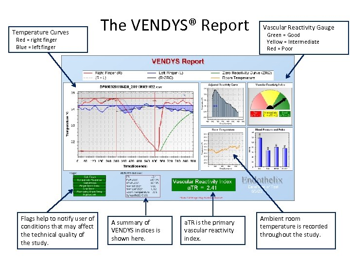 Temperature Curves The VENDYS® Report Red = right finger Blue = left finger Flags