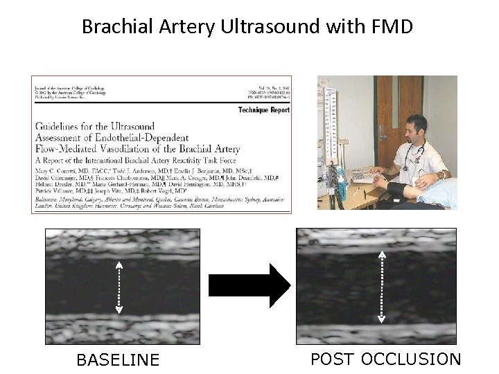 Brachial Artery Ultrasound with FMD BASELINE POST OCCLUSION