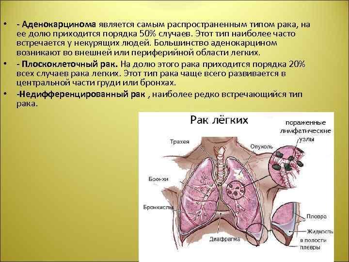• - Аденокарцинома является самым распространенным типом рака, на ее долю приходится порядка