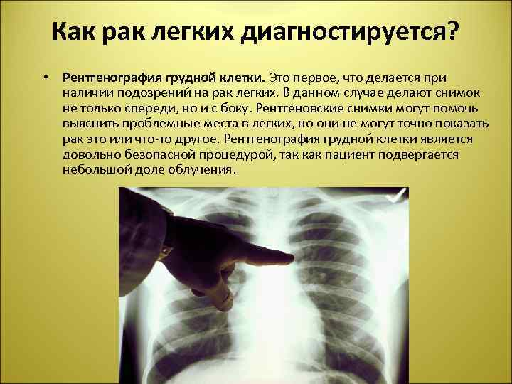 Как рак легких диагностируется? • Рентгенография грудной клетки. Это первое, что делается при наличии
