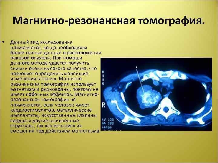Магнитно-резонансная томография. • Данный вид исследования применяется, когда необходимы более точные данные о расположении