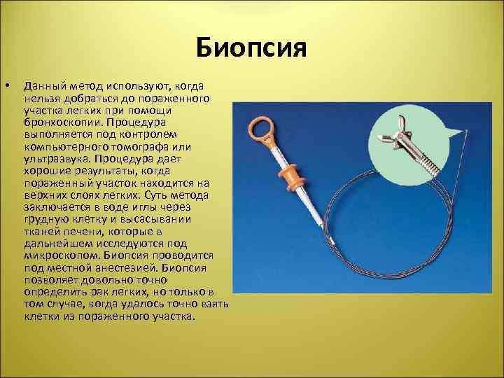 Биопсия • Данный метод используют, когда нельзя добраться до пораженного участка легких при помощи