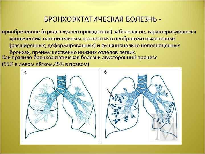 БРОНХОЭКТАТИЧЕСКАЯ БОЛЕЗНЬ приобретенное (в ряде случаев врожденное) заболевание, характеризующееся хроническим нагноительным процессом в необратимо