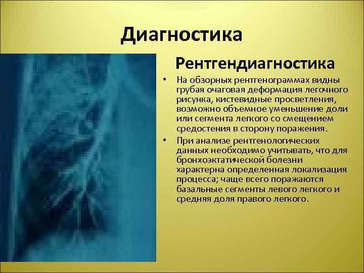 Диагностика Рентгендиагностика • На обзорных рентгенограммах видны грубая очаговая деформация легочного рисунка, кистевидные просветления,
