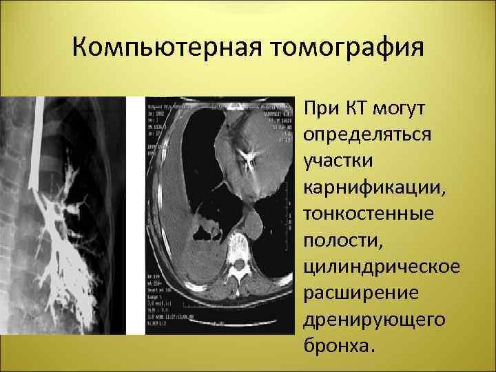 Компьютерная томография • При КТ могут определяться участки карнификации, тонкостенные полости, цилиндрическое расширение дренирующего