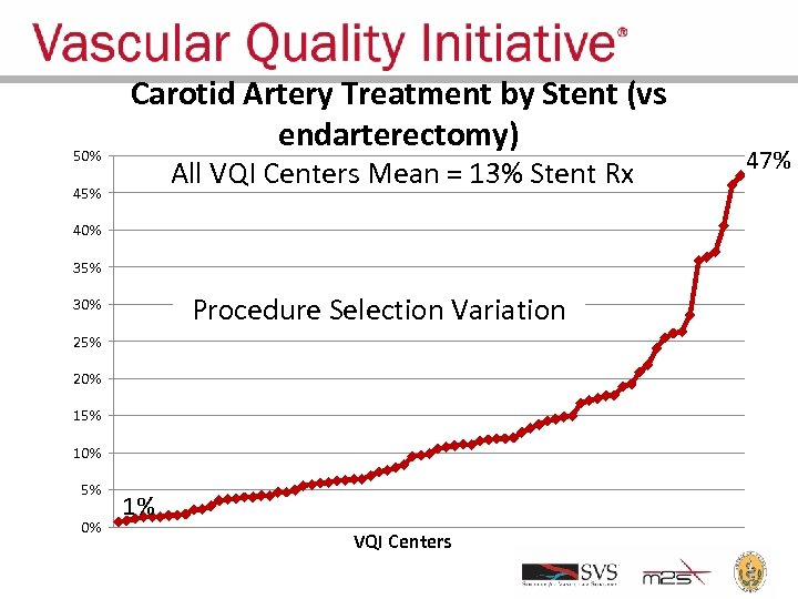 50% Carotid Artery Treatment by Stent (vs endarterectomy) All VQI Centers Mean = 13%