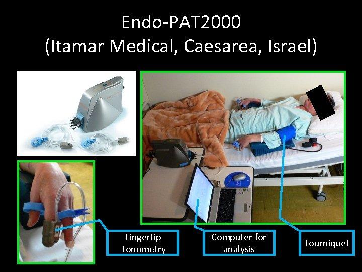 Endo-PAT 2000 (Itamar Medical, Caesarea, Israel) Fingertip tonometry Computer for analysis Tourniquet