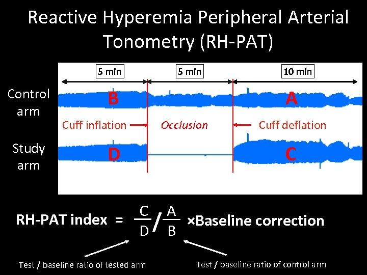 Reactive Hyperemia Peripheral Arterial Tonometry (RH-PAT) 5 min Control arm Study arm 5 min