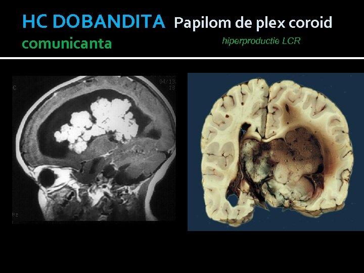 HC DOBANDITA Papilom de plex coroid comunicanta hiperproductie LCR