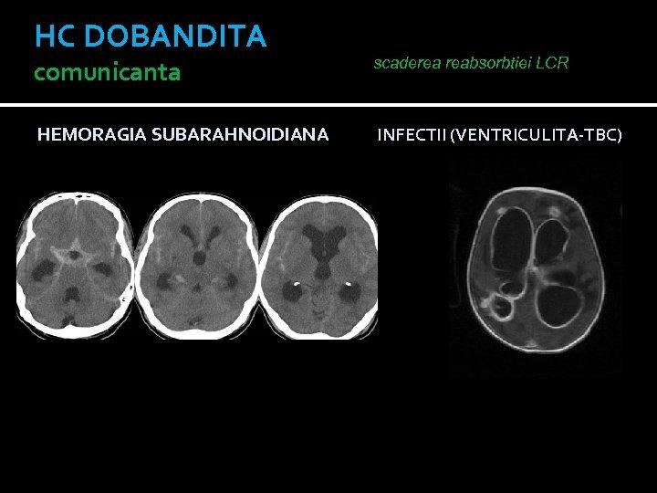 HC DOBANDITA comunicanta scaderea reabsorbtiei LCR HEMORAGIA SUBARAHNOIDIANA INFECTII (VENTRICULITA-TBC)