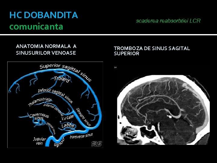 HC DOBANDITA comunicanta ANATOMIA NORMALA A SINUSURILOR VENOASE scaderea reabsorbtiei LCR TROMBOZA DE SINUS