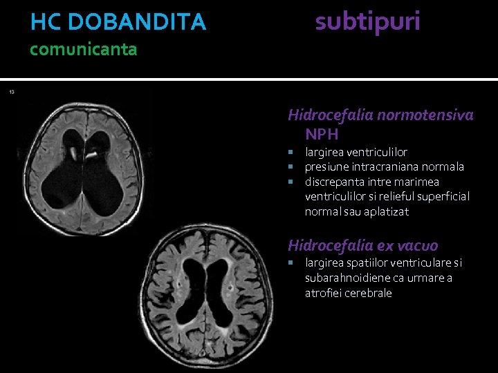 HC DOBANDITA subtipuri comunicanta Hidrocefalia normotensiva NPH largirea ventriculilor presiune intracraniana normala discrepanta intre