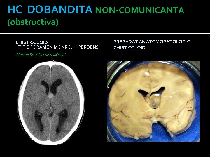 HC DOBANDITA NON-COMUNICANTA (obstructiva) CHIST COLOID - TIPIC FORAMEN MONRO, HIPERDENS PE CT COMPRESIA