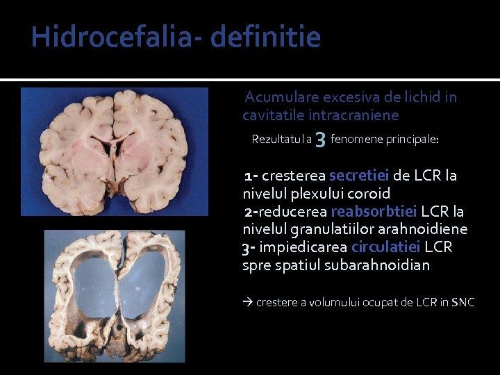 Hidrocefalia- definitie hydro= apa cephalus= cap Acumulare excesiva de lichid in cavitatile intracraniene Rezultatul