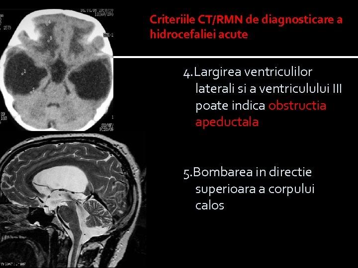 Criteriile CT/RMN de diagnosticare a hidrocefaliei acute 4. Largirea ventriculilor laterali si a ventriculului