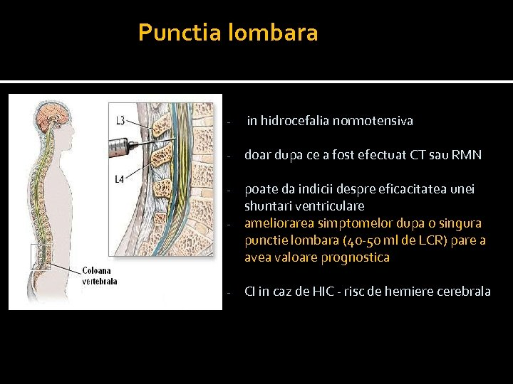 Punctia lombara - in hidrocefalia normotensiva - doar dupa ce a fost efectuat CT