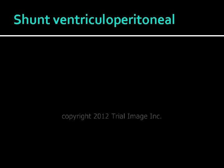 Shunt ventriculoperitoneal