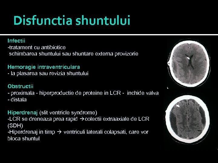 Disfunctia shuntului Infectii -tratament cu antibiotice schimbarea shuntului sau shuntare externa provizorie Hemoragie intraventriculara