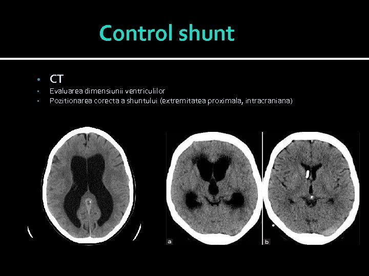 Control shunt • • • CT Evaluarea dimensiunii ventriculilor Pozitionarea corecta a shuntului (extremitatea