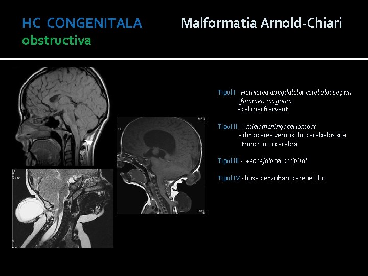 HC CONGENITALA Malformatia Arnold-Chiari obstructiva Tipul I - Hernierea amigdalelor cerebeloase prin foramen magnum