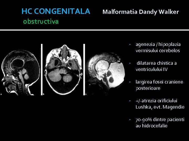 HC CONGENITALA Malformatia Dandy Walker obstructiva • agenezia / hipoplazia vermisului cerebelos • dilatarea