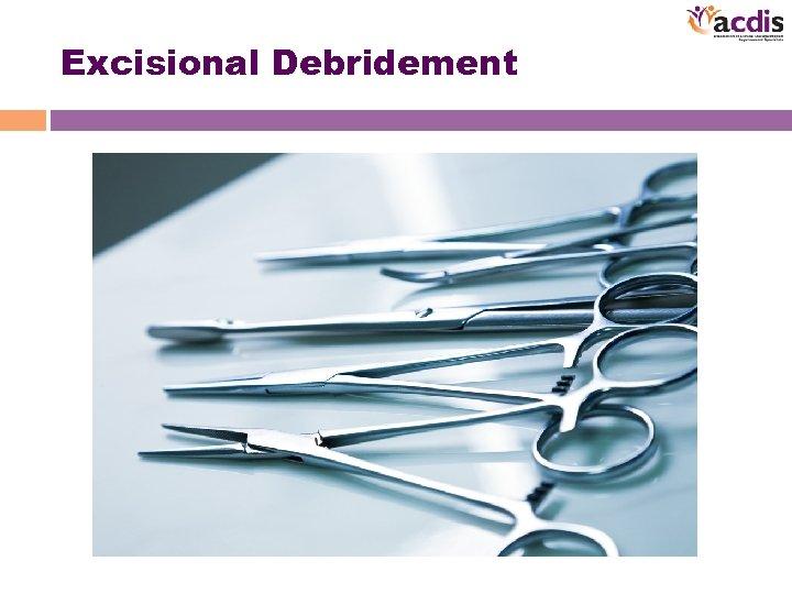 Excisional Debridement