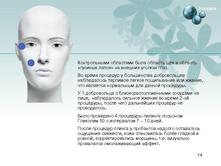 Контрольными областями была область щёк и область «гусиных лапок» на внешних уголках глаз. Во