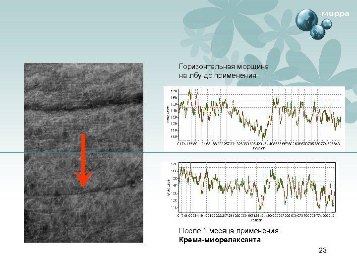 Горизонтальная морщина на лбу до применения После 1 месяца применения Крема-миорелаксанта 23