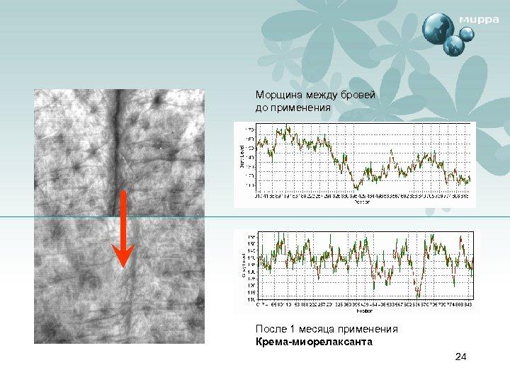 Морщина между бровей до применения После 1 месяца применения Крема-миорелаксанта 24