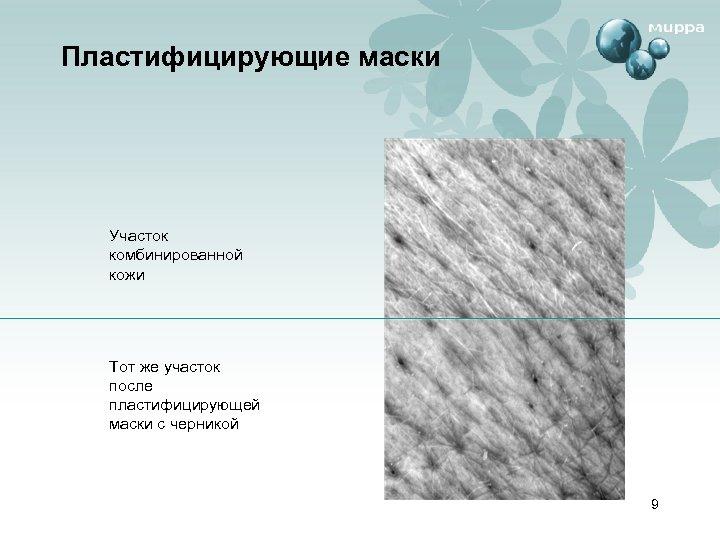 Пластифицирующие маски Участок комбинированной кожи Тот же участок после пластифицирующей маски с черникой 9