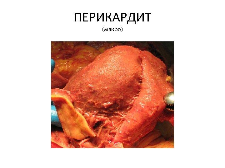 ПЕРИКАРДИТ (макро)